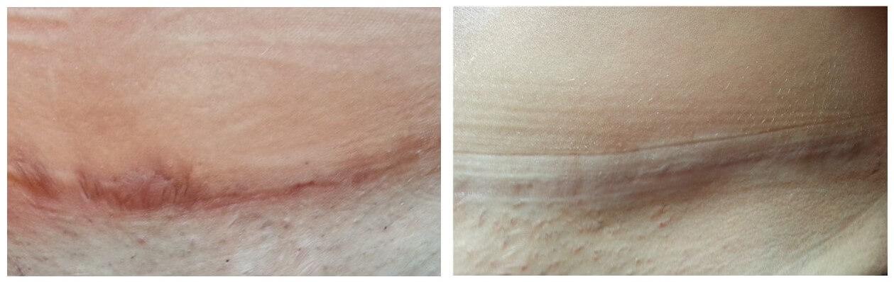 Rio Scanning di rimozione dei capelli x60 laser … – Decip