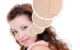 ringiovanire la pelle