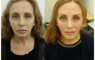 Un esempio di un viso prima e dopo trattato con il Lifting non Chirurgico